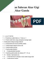 Perawatan Saluran Akar Gigi Akar Ganda