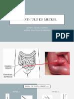 Divertículo de meckel - Micaela Benitez.pptx