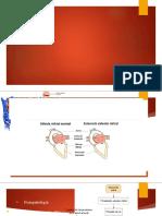 Cardiopatia isquemica, valvulopatias y arritmias. PARTE 5pptx.pptx