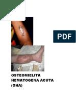 OSTEOMIELITA HEMATOGENA ACUTA