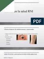 Efectos en la salud RNI