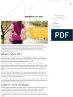 Pelvic Tilt_ What Is It and How Do You Correct It_ _ ISSA