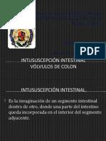 intususcepción intestinal