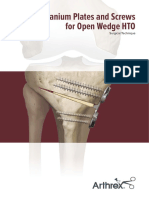 titanium-plates-and-screws-for-open-wedge-hto