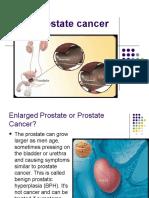 Prostate cancer.ppt