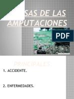 PPW CAUSAS DE AMPUTACION