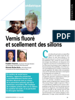 Vernis Fluoré Et Scellement Des Sillons