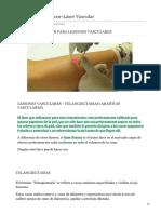 medicmajoor.com-Clínica Medic Majoor-Láser Vascular