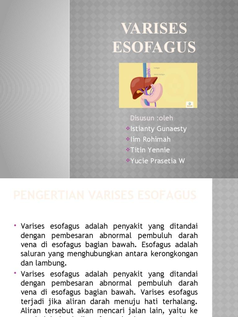 a lábak varikózisának összeesküvése)