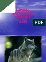 lupus eritematos.ppsx