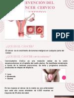 CANCER CERVICO UTERINO Presentación3.pptx