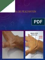 PRUEBA DE FILKENSTEIN