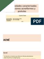 IV Clase Acneiformes y pústulas