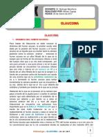 8. Glaucoma 23-03-17.pdf