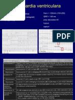 ARITMII VENTRICULARE.pdf