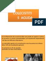Colesistitis y colangitis