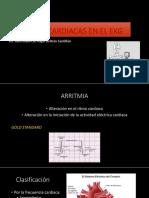 ARRITMIAS-CARDIACAS-EN-EL-EKG -