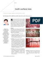 Non Carious Tooth Surface Loss