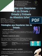 (Seminario 6 ) Órtesis y prótesis