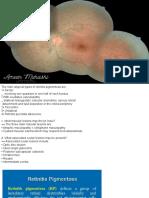 Retinitis Pigmentosa (1)