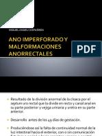 anoimperforadoymalformacionesanorectales-140623145437-phpapp01