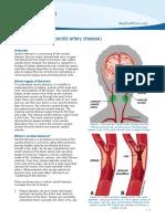 pe-carotidstenosis