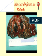 Conseqüências do fumo no Pulmão.ppt