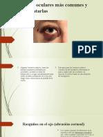 Lesiones oculares más comunes y cómo tratarlas