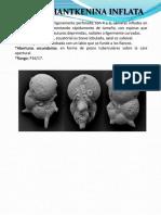 CRIBROHANTKENINA INFLATA.pdf