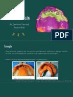 Toma de impresión PPR.pdf