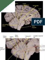 ensayo neuro 2-1.pdf