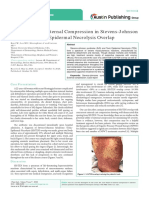 Case Report of External Compression in Stevens-Johnson Syndrome-Toxic Epidermal Necrolysis Overlap