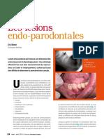 Les-Lésions-Endo-Parodontales