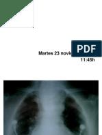 02 Intubación Despierto.pdf