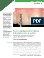 7_Previsión_óptica_directa_e_indirecta_de_la_apariencia_de_la_prótesis