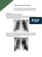 Mehu 107_31_Caso Clínico 2 de Toracotomías y Drenaje Torácico