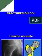 02- Fract ext sup femur.ppt