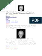 sindrome de golden relacion con los arcos branquiales