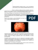 colitis ulcerativa cronica idiopatica gastro