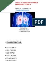 Concer Des Poumons