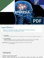 SEMINARIO EPILEPSIA