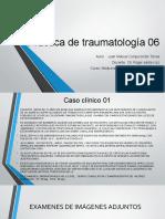 PRACTICA DE TRAUMATOLOGIA 06