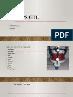 ANGGUN ULFA DOPS GTL