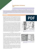 Dissimilar Weld+IGCAR Metallurgy