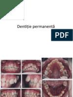 Dentiție permanentă cazuri