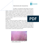 Hamartoma de Músculo Liso 2