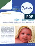 focus_erytheme