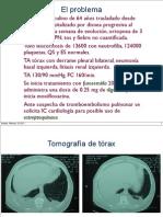 Clase de diuréticos