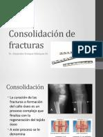 Consolidacion-de-fracturas