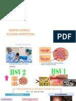 HERPES SIMPLE Y ECCEMA HERPETICO